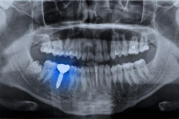 Panoramic dental